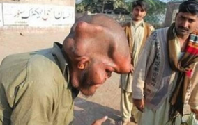 The Cost of Islamic Incest